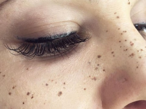 People are now getting freckles tattooed on their faces