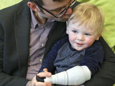 Self-taught dad creates a prosthetic arm for his toddler using an Xbox scanner