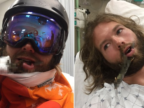 Man impaled by 18-inch branch after snowboard jump goes wrong