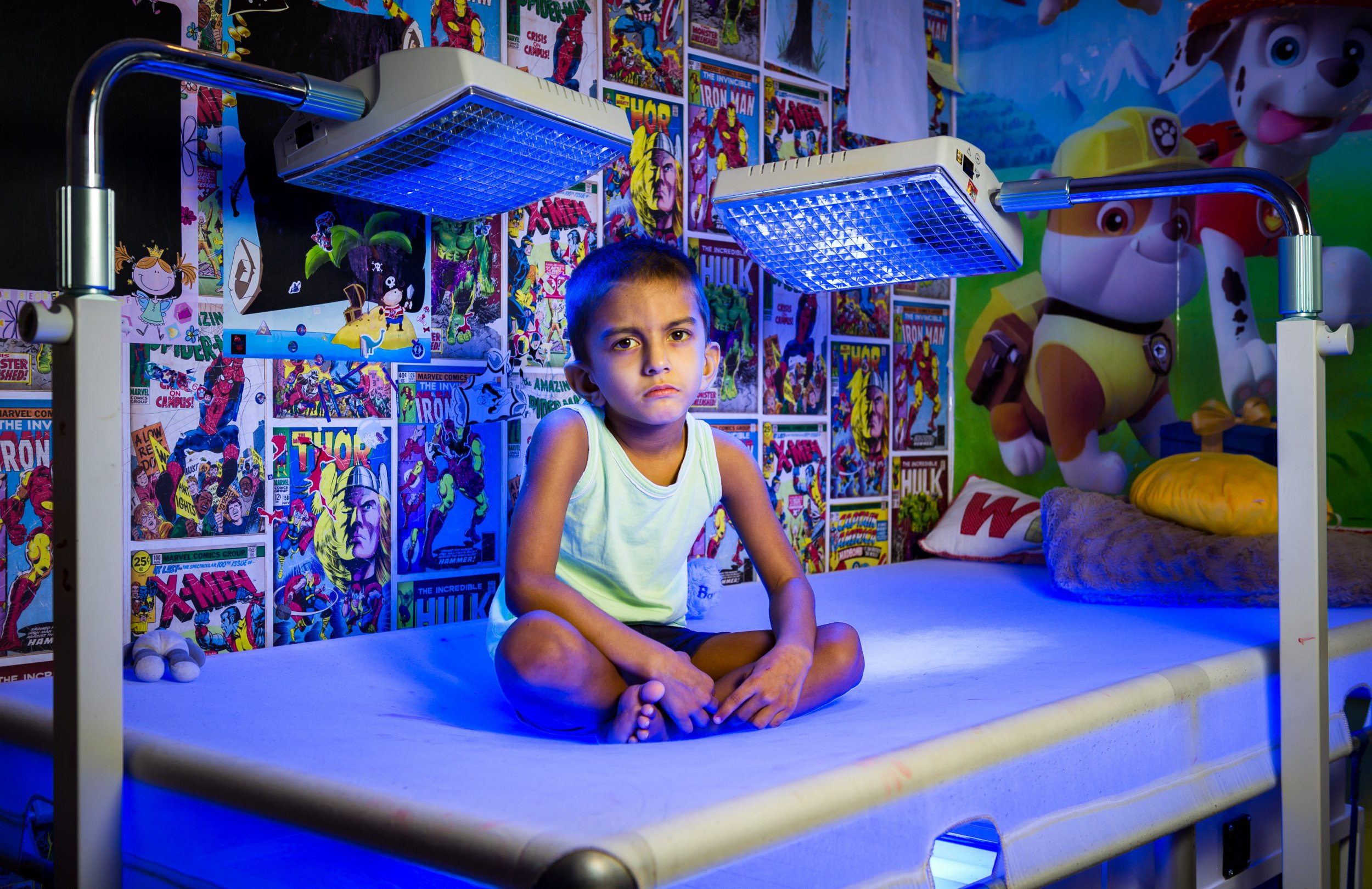 Boy, 4, must spend 20 hours a day under bright lights to treat rare liver disease