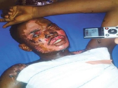 Man scarred for life in acid attack by ex-girlfriend