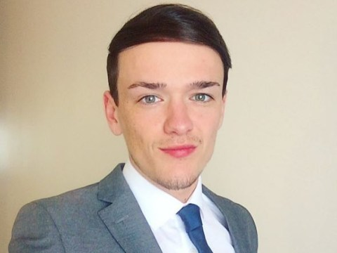 Britain's Got Talent winner George Sampson is going bald at 23 and getting a hair transplant