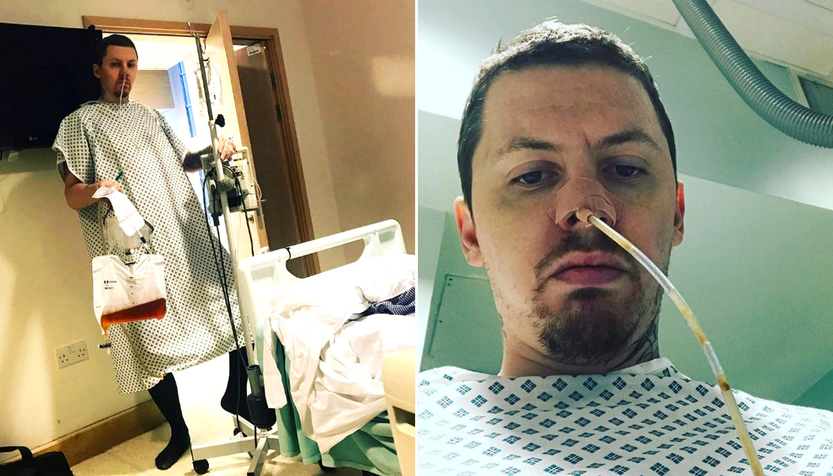 Professor Green ended up back in hospital after hernia removal operation