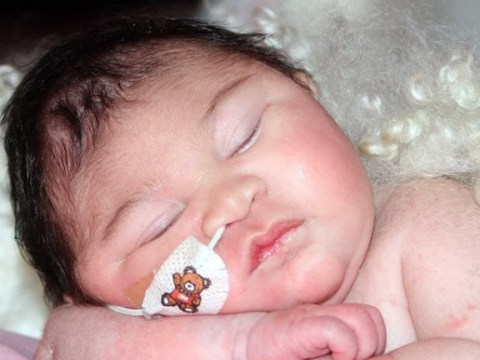Mother told nothing more can be done for baby born with brain outside her skull
