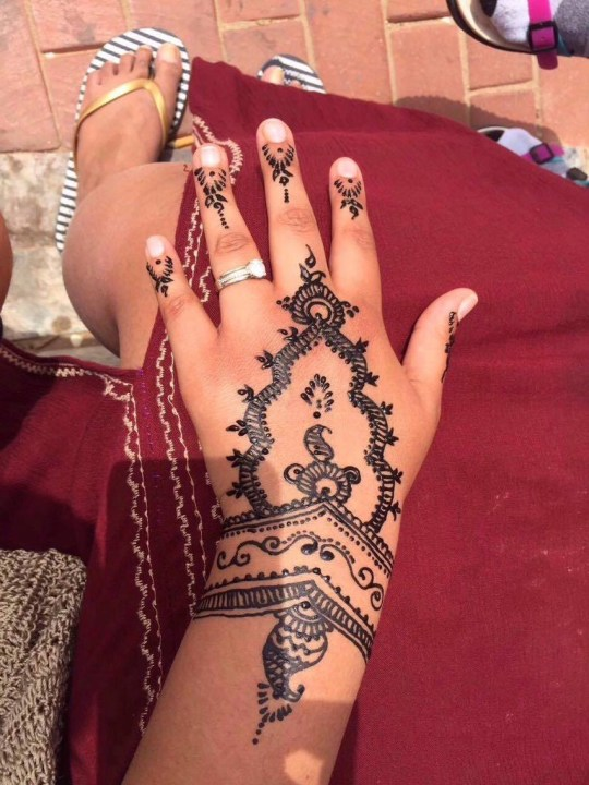 Woman's hands come out in blisters after getting black henna