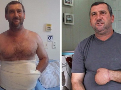 Man has new hand grown in his stomach after losing it in accident