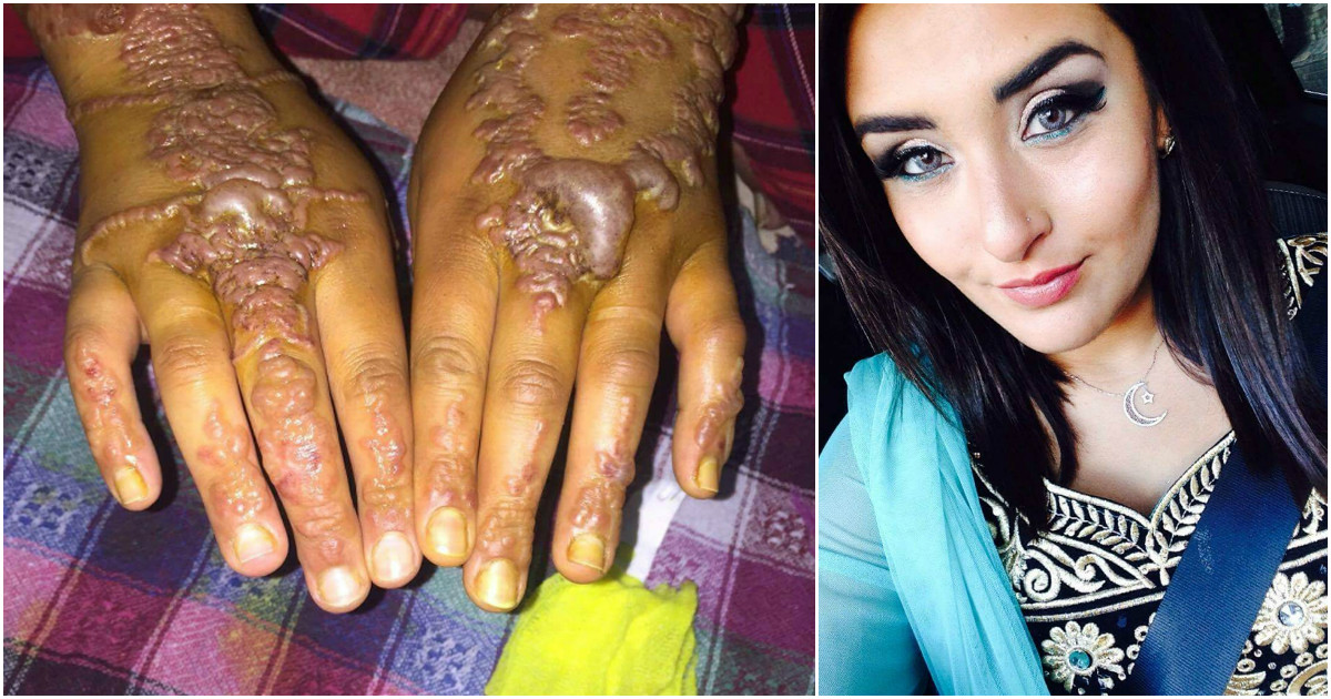 Black Henna Tattoo Uk: Woman's Hands Come Out In Blisters After Getting Black