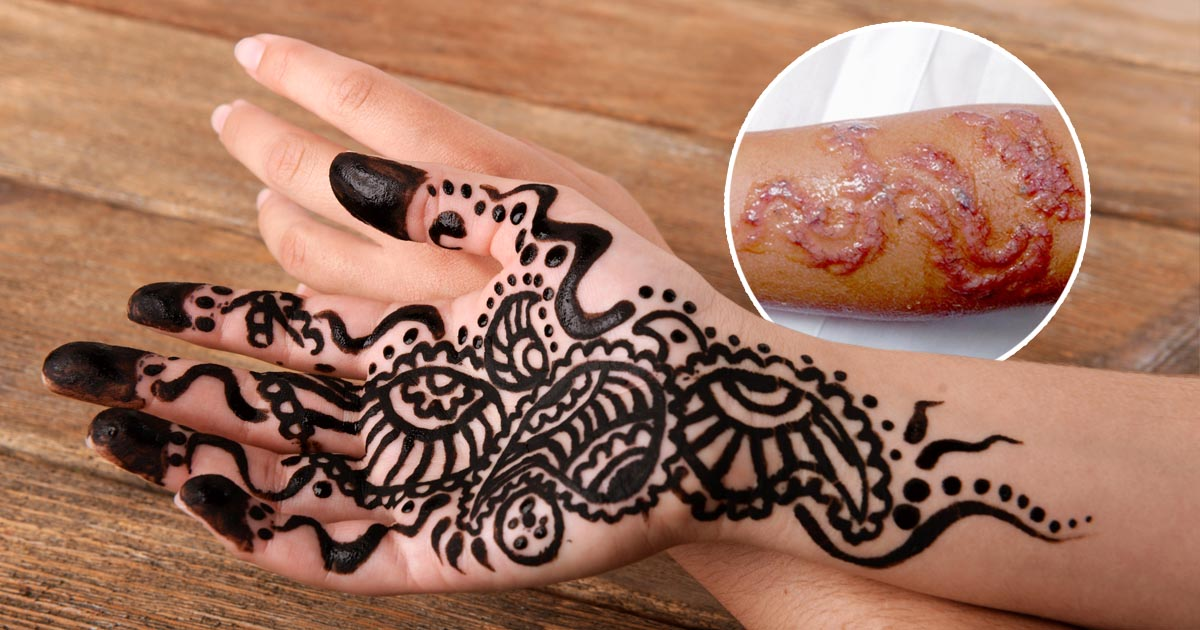 Black Henna Ink: Ash Kumar Explains How To Tell If Someone's Using Illegal