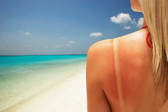 How long does sunburn take to heal and how to get rid of it? | Metro