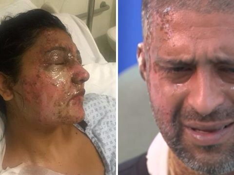 Acid attack that badly injured two people now being treated as a hate crime