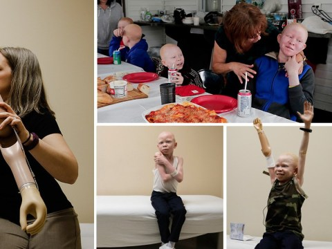 Albino children hunted for their limbs get another chance at life with prosthetics