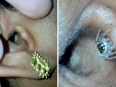 Woman goes to doctors with headache only to find giant spider in ear