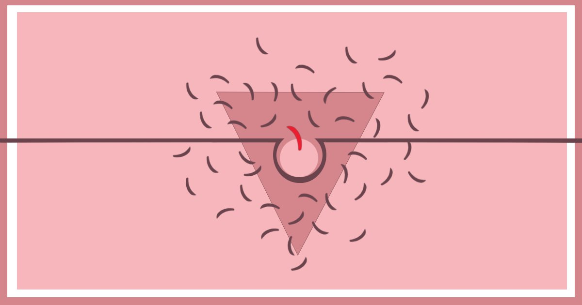 How to prevent and get rid of ingrown hairs