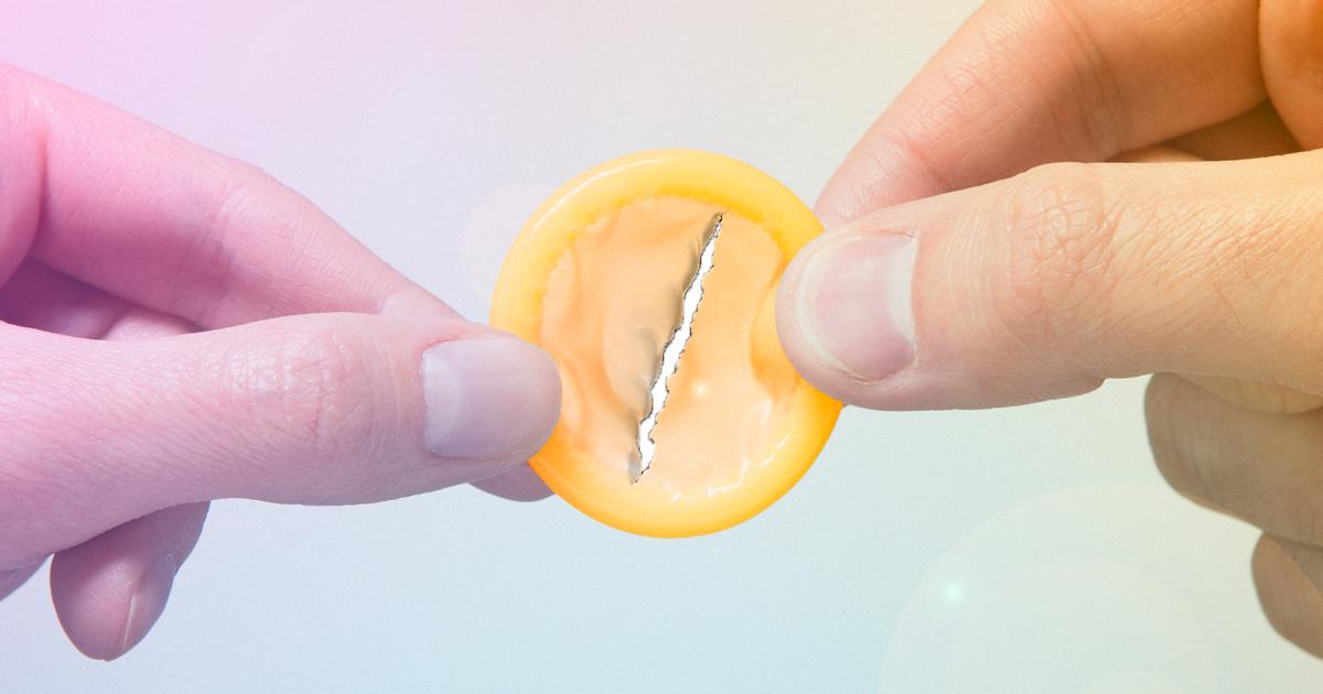 Penis correction surgery