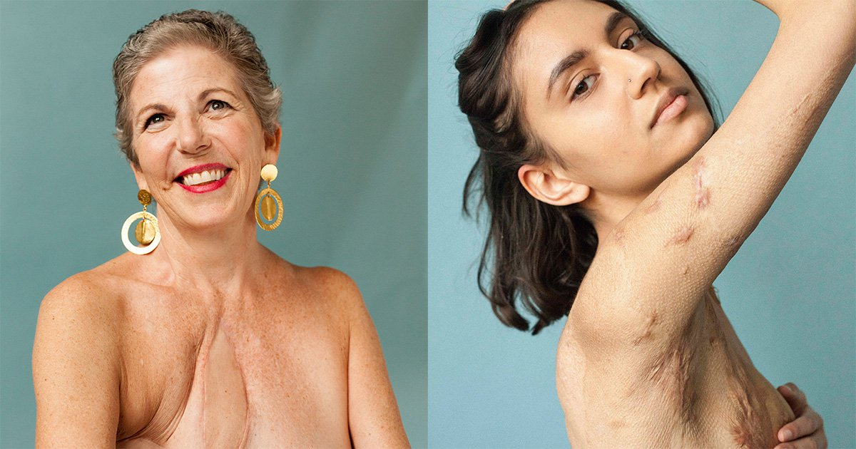 Beautiful photo series documents people's scars and the stories behind them