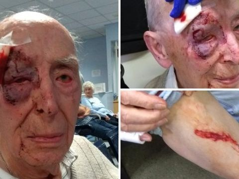 War veteran, 91, left bloodied after confronting schoolgirls throwing apples at his house