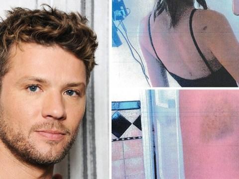 Ryan Phillippe denies abuse allegations as pictures emerge of ex-girlfriend Elsie Hewitt's bruises