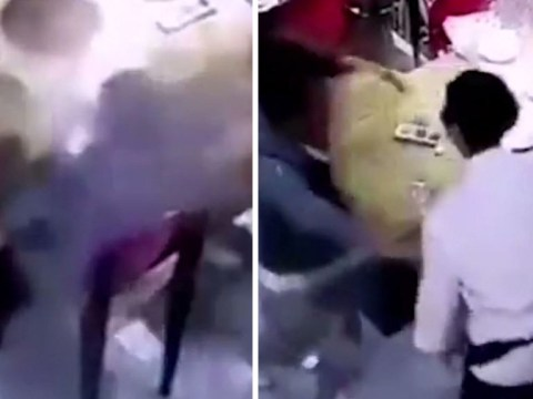 Waiter slips and spills boiling hot soup all over child's face