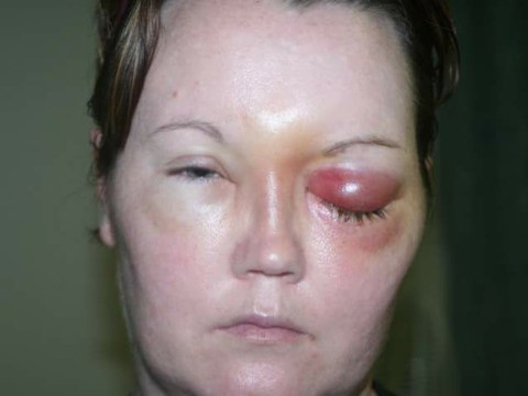 Contact lens parasite left woman paralysed and blinded