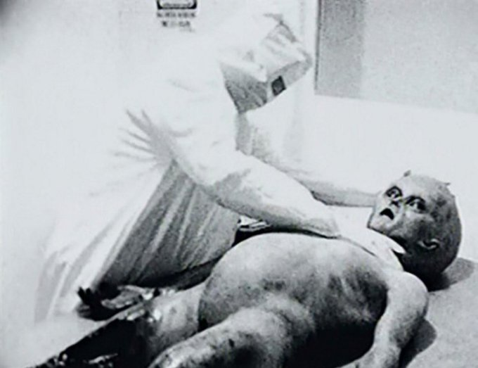 Spyros Melaris behind infamous 'alien autopsy' video finally reveals the  truth behind it | Metro News