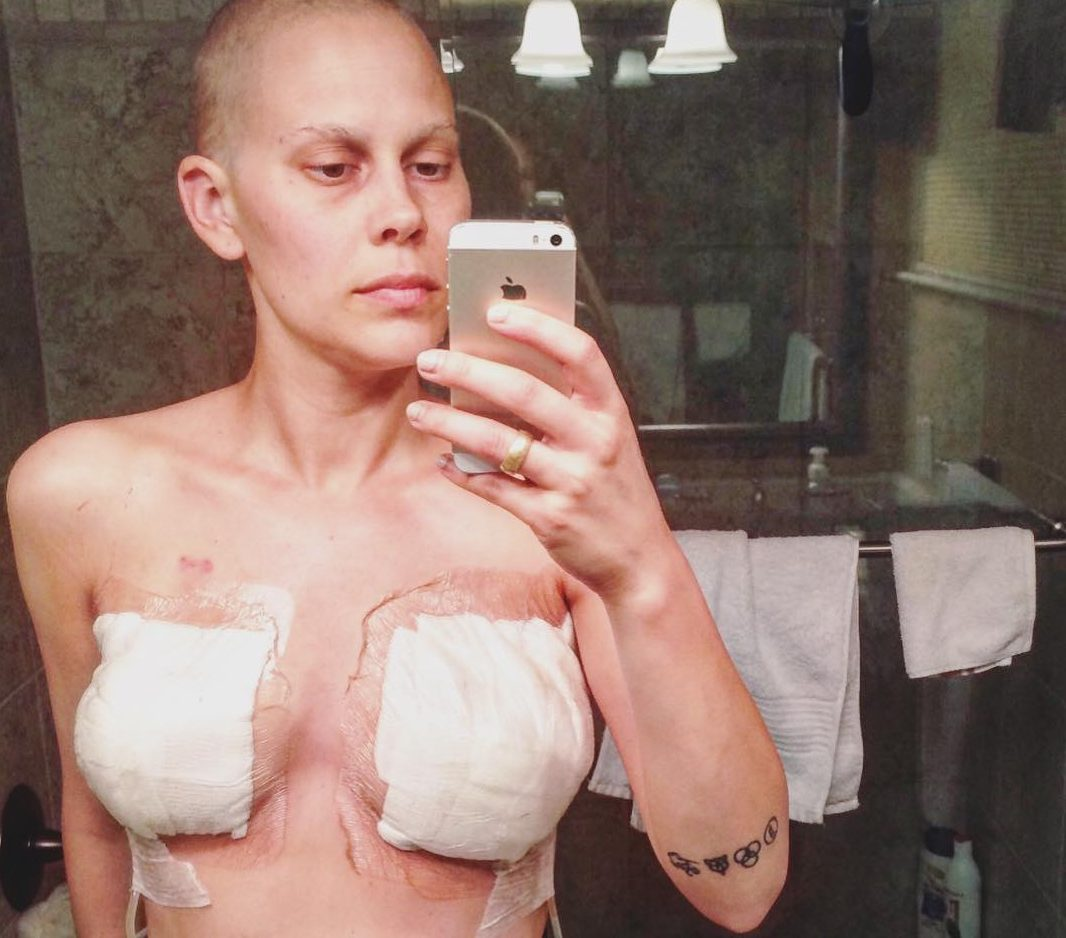 Woman shares photo of her body after a double mastectomy to urge people to do regular checks