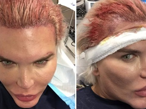 Human Ken doll Rodrigo Alves shares grisly photos of his £19k hair transplant