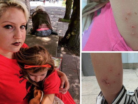 Mother and daughter, 7, covered in bed bug bites after British Airways flight