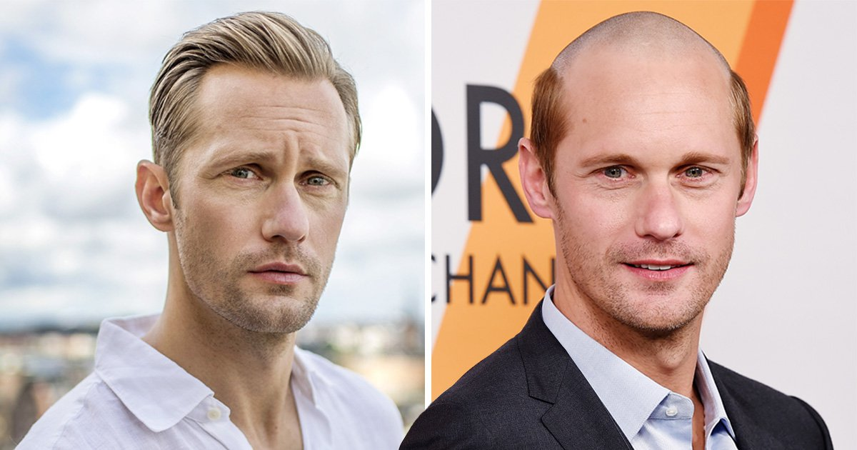 Alexander Skarsgard goes seriously bald almost overnight