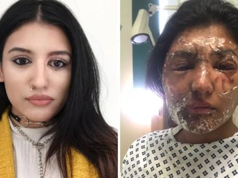 Brave acid attack victim gets huge support for new profile picture