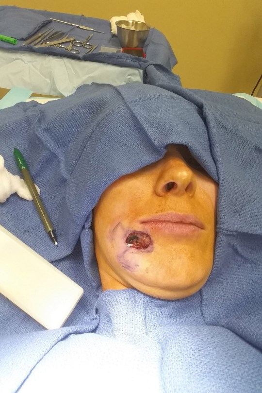 Woman thought gaping hole was just blackhead but it was