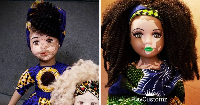 Artist creates dolls with vitiligo to show children that diversity is beautiful