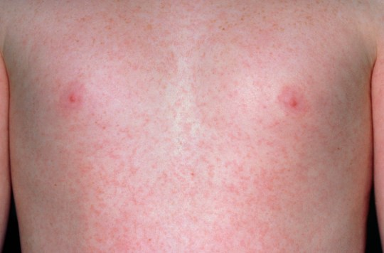 What Is Scarlet Fever Everything Parents Need To Know -3178