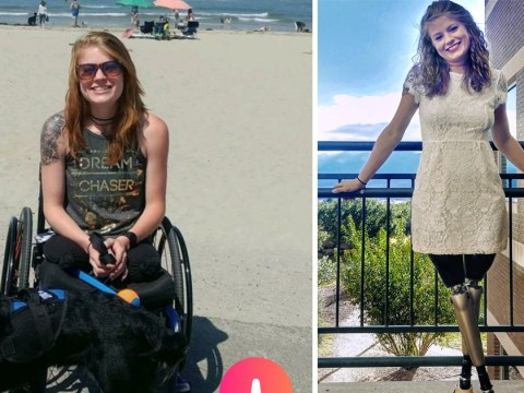 Double amputee receives tons of Tinder matches thanks to her brilliant bio