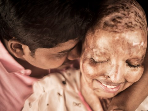 Woman blinded by acid attack finds love from her hospital bed