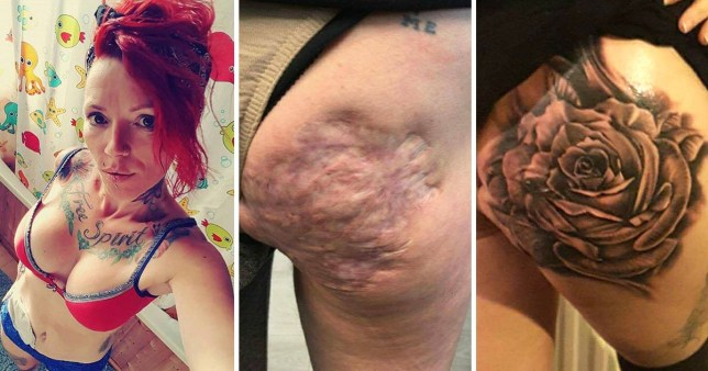 Mum-of-six gets large rose tattoo to cover the abscess scars on her ...