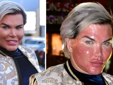 Rodrigo Alves braves a pre-Christmas chemical peel – as he preps for New Year rib removal