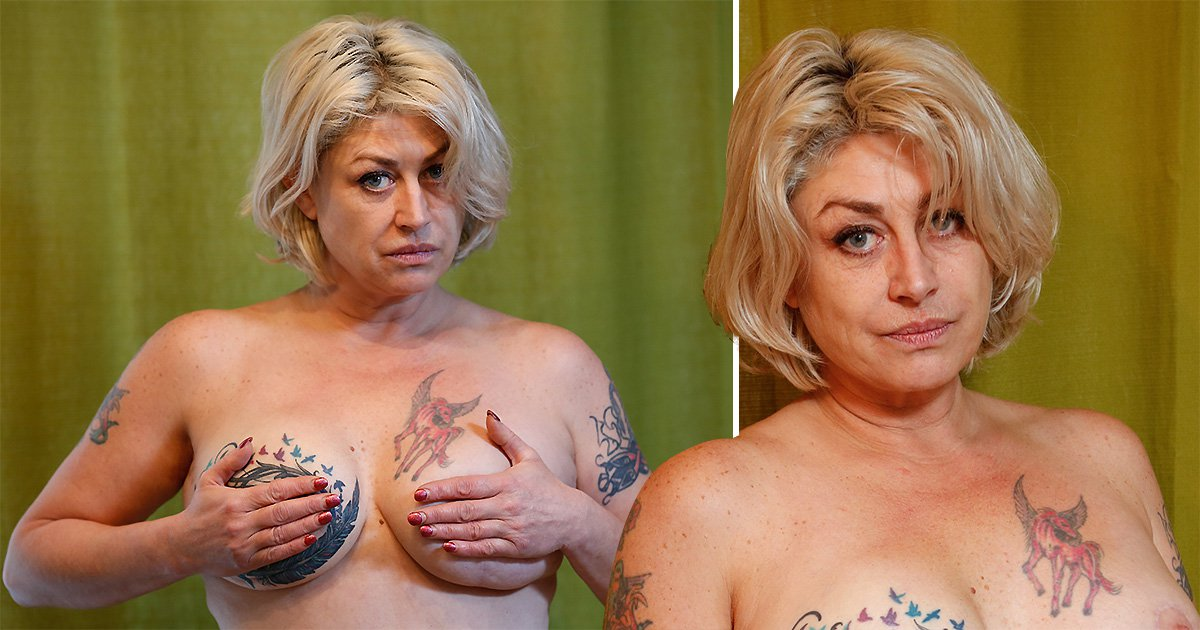 Ex-glamour model gets £100,000 compensation after breast was removed needlessly