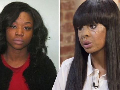 Woman who had acid thrown in her face by 'envious' friend speaks out