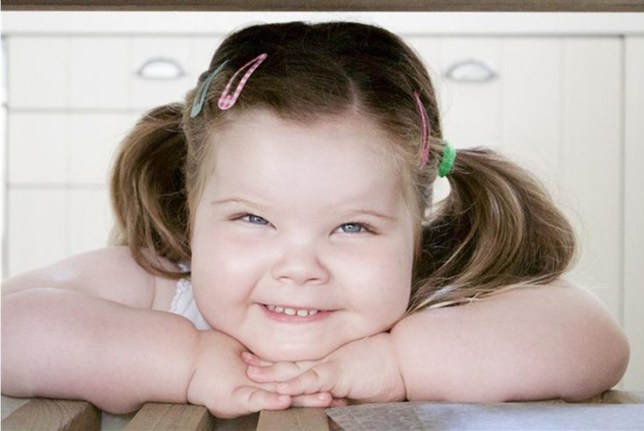 Cruel strangers stare at 'fat' girl, 4, with rare medical condition