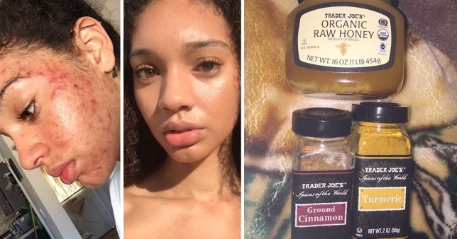 Model 'clears up severe acne in a week with this natural