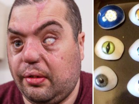 Have you seen this blind former soldier's £2,000 glass eyes?