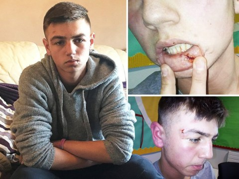 Boy, 15, beaten up by 20 kids after sticking up for bullied girl