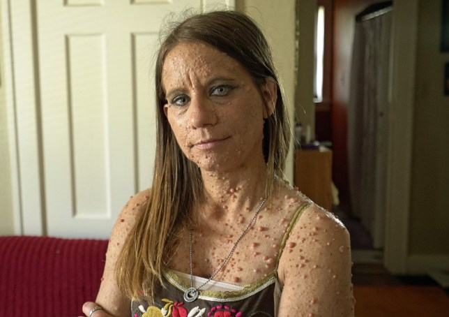Woman with 6,000 tumours all over her body makes remarkable recovery