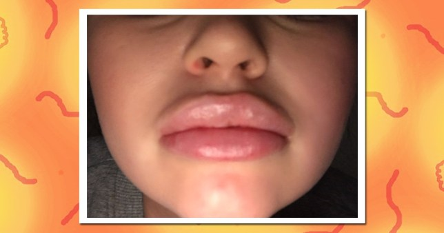 Lip fillers - are they worth the faff?