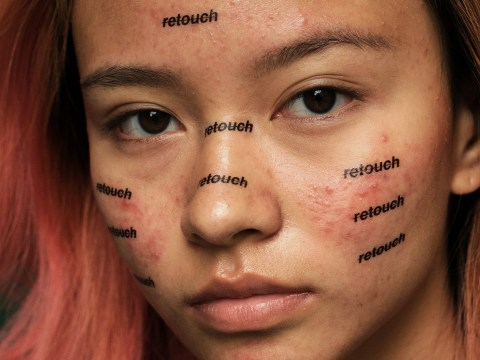 Unretouched photo series is a reminder that acne is completely normal