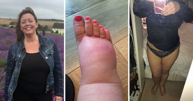 Woman with lipoedema will spend her entire divorce settlement on