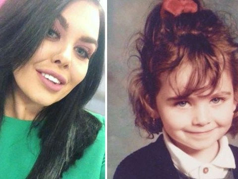 Scarlett Moffatt hits back at plastic surgery shamers: 'My face is exactly the same'