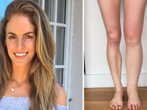 Mum who was left with a gigantic leg after pregnancy had to get liposuction to treat it