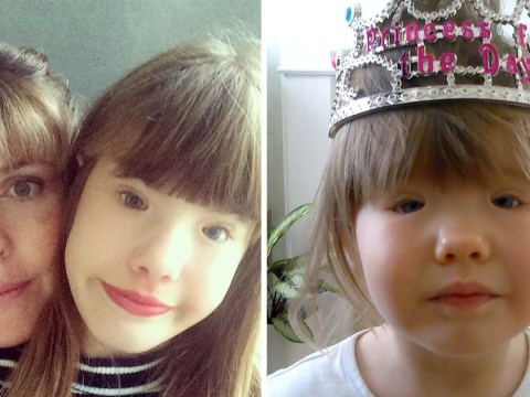 Girl, 13, born with no muscles in her eyelids says she likes looking different