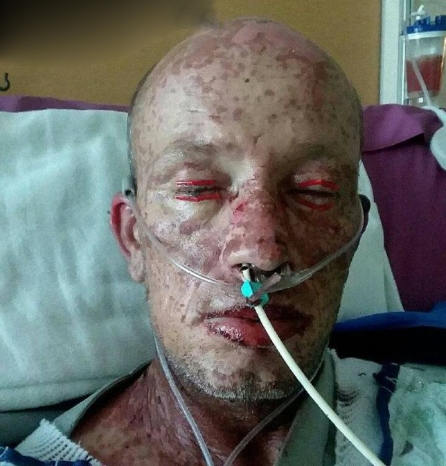 PICS BY JOSH DENNIS / CATERS NEWS - (PICTURED: Day 6 Josh experienced horrific burning skin, blistering, bleeding eyes and more) - A father-of-two who was left looking like REAL-LIFE ZOMBIE and NEARLY DIED from a reaction to antibiotics credits wifes love for his miraculous recovery. Josh Dennis, 38, from Holly in Colorado, USA, was left with burns over 90percent of his body, temporarily blinded and unable to move. His symptoms were caused by Stevens-Johnson Syndrome (SJS) and Toxic Epidermal Necrolysis (TEN) stemming from a reaction to the antibiotics prescribed cure a staph infection in his jaw. Initially he experienced itching and irritation underneath his finger nails, before developing hives and in less than a week was admitted to the burns ward. The union heavy equipment operator says he looked like a zombie due to the severe burns to his skin caused by SJS/TEN and was lucky to survive. He was released from hospital last month and now nearly seven weeks on, he is returning to normal life having battled to walk again, eat and perform basic daily tasks. The father-of-two credits wife Stacie, 34, with helping him to recover so quickly and says that even during his darkest moments she kept him alive. - SEE CATERS COPY